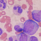 Stem Cell Collection Is Feasible After Short-Course Revlimid For Myeloma Patients