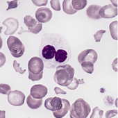 Multiple Myeloma And MGUS Patients May Have An Increased Risk Of Developing Certain Cancers