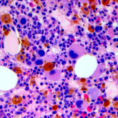 Transplantation With Stem Cells Collected After An Initial Transplant May Increase A Myeloma Patient's Risk Of Developing MDS